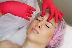 De esthetische Kosmetiek Hyaluronic zure injectie royalty-vrije stock afbeelding