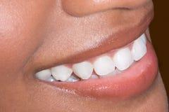 De etnische zwarte Afrikaans-Amerikaanse close-up van vrouwentanden Stock Afbeeldingen