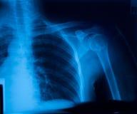 De film van de röntgenstraal stock afbeelding