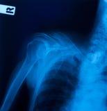 De film van de röntgenstraal Stock Foto