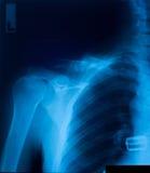 De film van de röntgenstraal royalty-vrije stock foto