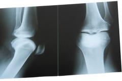 De Foto van de röntgenstraal Stock Afbeeldingen