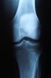 De foto van de röntgenstraal van menselijke knie royalty-vrije stock afbeelding