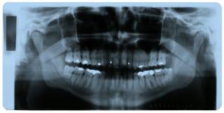 De foto van de röntgenstraal van menselijke tanden Stock Foto's