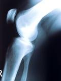 De fotografie van de röntgenstraal Royalty-vrije Stock Foto