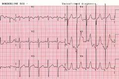 De geduldige grafiek van de het hartgolf van ` s, die een hulpmiddel is om artsen te helpen gegevens in de ziekenhuizen analysere stock foto