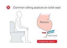 De gemeenschappelijke houding terwijl het zitten op toilet maakt rectumongemak vector illustratie
