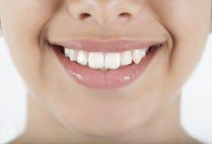 De glimlach en de tanden van de vrouw Stock Foto