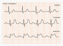 De golven van het hartcardiogram Stock Foto