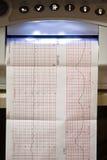 De grafiek van het electrocardiogram Stock Fotografie