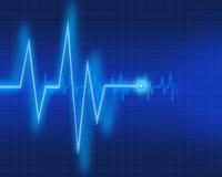 De grafiek van het electrocardiogram Royalty-vrije Stock Afbeeldingen
