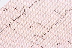 De grafiek van het electrocardiogram Stock Foto's