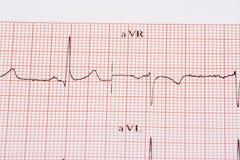 De grafiek van het electrocardiogram stock afbeelding