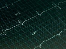De grafiek van het elektrocardiogram stock foto