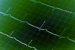De grafiek van het hart ECG op papier stock afbeeldingen