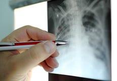 De hand met pen richt aan een gebiedsRöntgenstraal, Stock Foto's