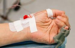 De hand van de patiënt met catheter en oxymeter Stock Afbeeldingen