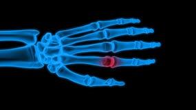 De hand van de röntgenstraal Stock Foto's