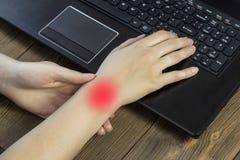 De handen van een meisjesholding achter laptop, een pijnlijke hand, artrosehand stock afbeeldingen