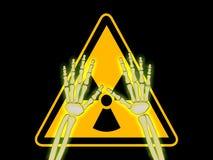 De handen van het skelet met symbool van stralingswaarschuwing Stock Fotografie