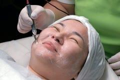 De hardwarekosmetiek Een Moslimvrouw met haar ogen sloot glimlachen tijdens een therapeutische disincrustationprocedure Close-up  stock foto's