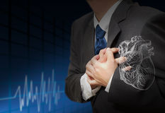 De hartaanval en het hart slaan cardiogram stock foto's