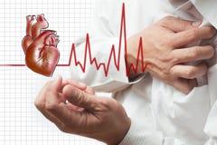 De hartaanval en het hart slaan cardiogramachtergrond Royalty-vrije Stock Afbeeldingen