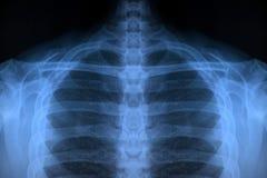 De hogere Röntgenstraal van het Lichaam Stock Afbeelding