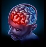 De hoofdpijn van Migrain Royalty-vrije Stock Afbeelding