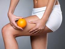 De huid van Cellulite op haar benen Stock Foto's
