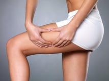 De huid van Cellulite op haar benen royalty-vrije stock foto
