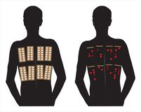 De huidtests van het allergieflard stock illustratie