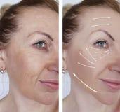 De huidverschil van vrouwenrimpels het antiaging geeft van before and after regeneratie de contouren aan stock foto's