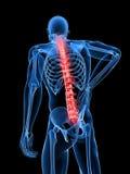 De illustratie van de rugpijn Stock Foto's