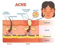 De illustratie van het acnediagram met haar, pukkel, huidlagen en structuur Vrouwelijk gezicht opzij Onderwijs medische informat Stock Afbeelding