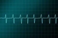De illustratie van het cardiogram ritm. Royalty-vrije Stock Foto