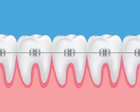 De illustratie van tandensteunen Stock Foto's