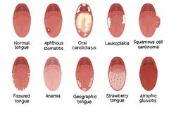 De illustratie van de tongziekte stock illustratie