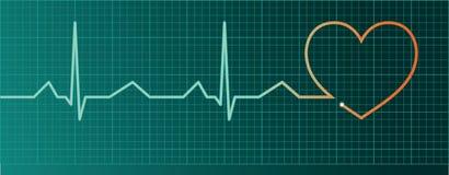 De impulsmonitor van het hart Royalty-vrije Stock Afbeelding