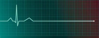 De impulsmonitor van het hart met flatline Stock Foto