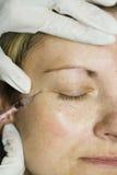 De injectie van Botox Stock Afbeeldingen