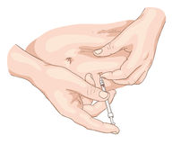 De injectie van de insuline in een buik. Royalty-vrije Stock Afbeeldingen