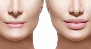 Before and after de injecties van de lippenvuller Stock Foto's
