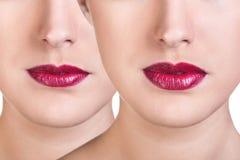 Before and after de injecties van de lippenvuller stock fotografie