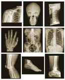 De inzameling van de röntgenstraal Stock Foto's