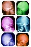 De inzameling van de schedel in kleuren Stock Foto