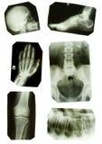 De inzameling van röntgenfoto's in originele tonen b/w Stock Afbeelding