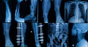De inzameling van Röntgenstraal, Veelvoudig deel van volwassene toont breuk bon stock fotografie