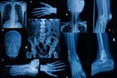 De inzameling van Röntgenstraal, Veelvoudig deel van volwassene toont breuk bon stock afbeeldingen