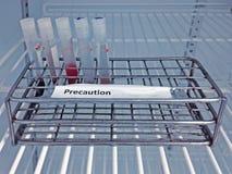 De inzamelingsbuis van het steekproefbloed met voorzorgsmaatregeletiket op rek Stock Afbeelding
